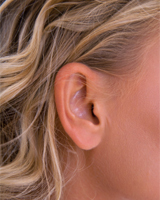 Ear Pinning | Otoplasty | Miami FL | Miami Beach FL