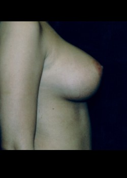 Breast Augmentation – Case 3